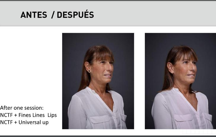 Bionutrilift, efecto lifting sin cirugía en Las Palma. Antes y después