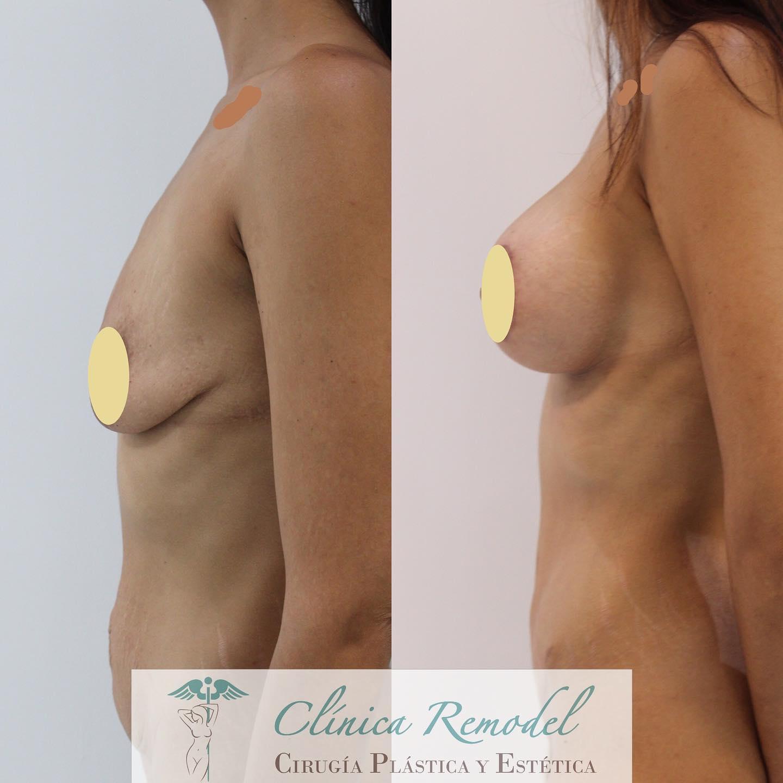 Aumento de pecho y abdominoplastia postmaternidad