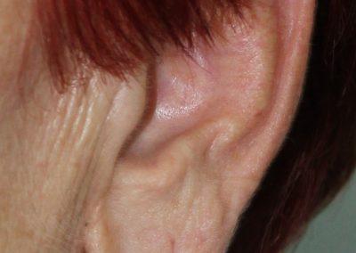 Lobuloplastia, corrección de lóbulo rasgado o elongado en Las Palmas