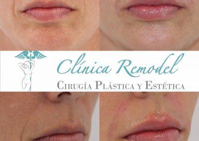 Tratamiento de labios y surcos con ácido hialuronico