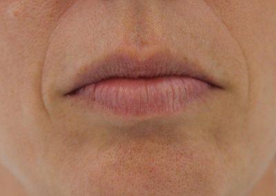 Tratamiento con ácido hialurónico para labios en Las Palmas. Imagen frontal del antes.