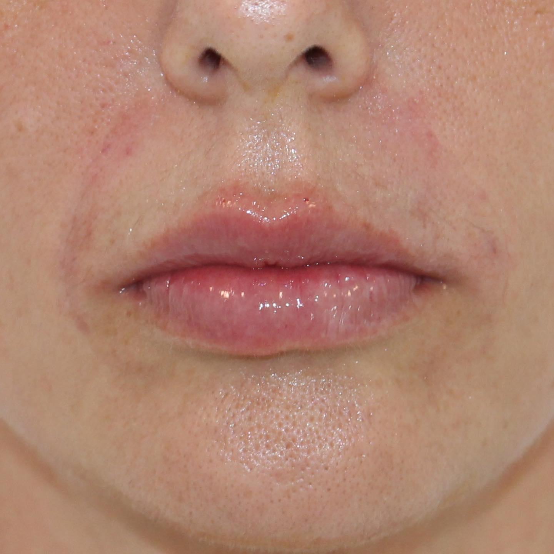 Tratamiento con ácido hialurónico para labios en Las Palmas. Imagen frontal del después.