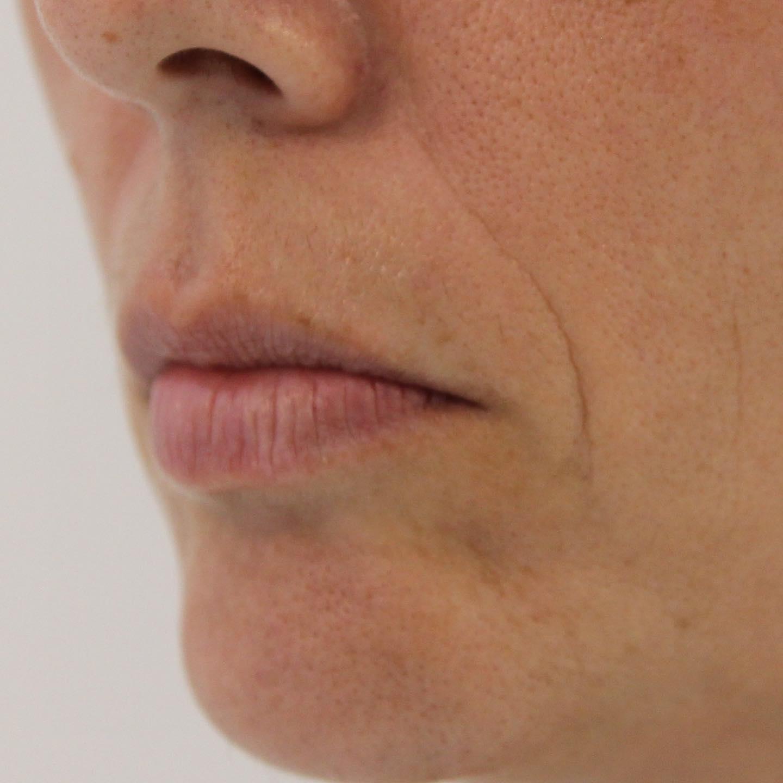 Tratamiento con ácido hialurónico para labios en Las Palmas. Imagen lateral del antes..