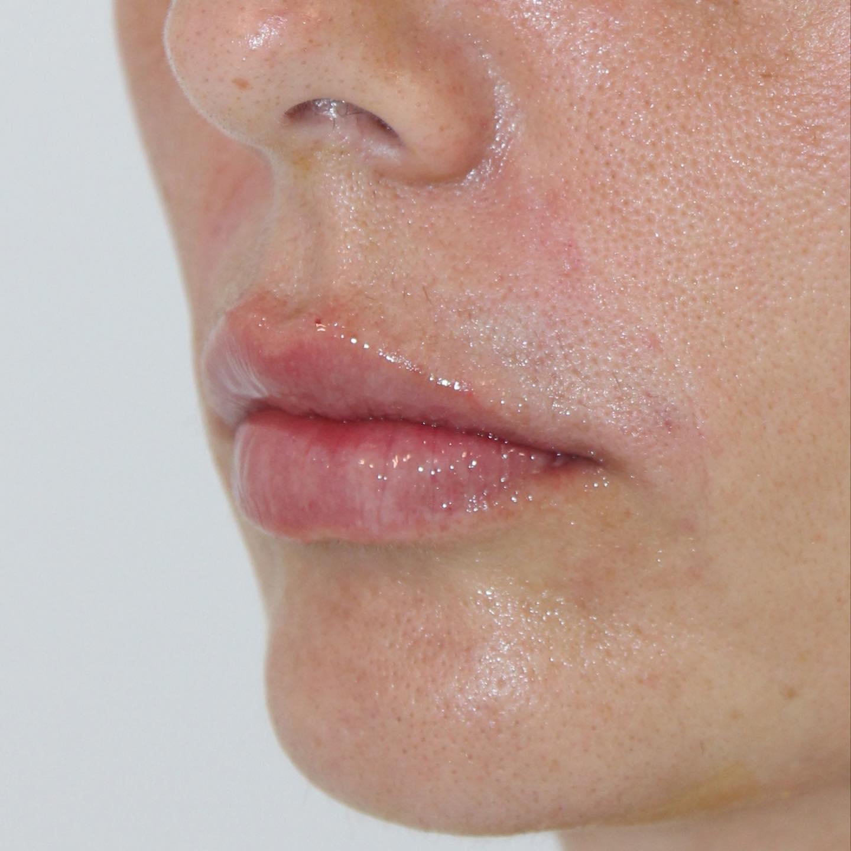 Tratamiento con ácido hialurónico para labios en Las Palmas. Imagen lateral del después.