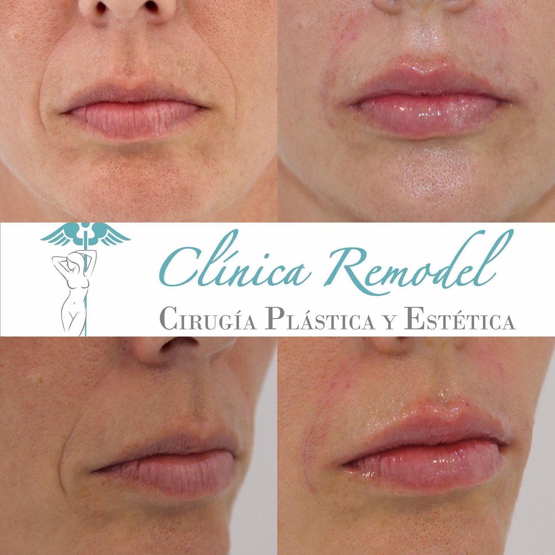 Aumento y rejuvenecimiento de labios con ácido hialurónico para labios en Las Palmas de Gran Canaria