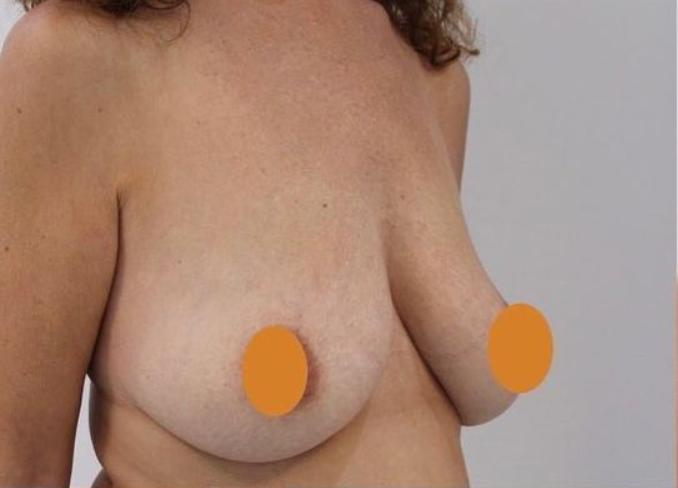 Aumento de pecho en pechos vacíos. Lateral antes.