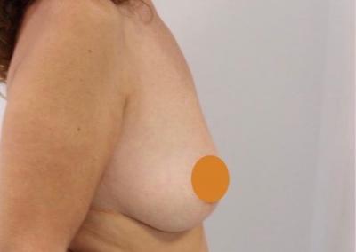 Aumento de pecho para solucionar unos pechos vacíos