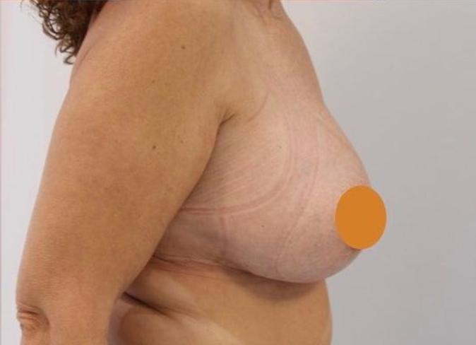 Aumento de pecho en pechos vacíos. Perfil después