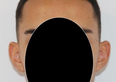Otoplastia o cirugía de orejas a las 3 semanas de la intervención