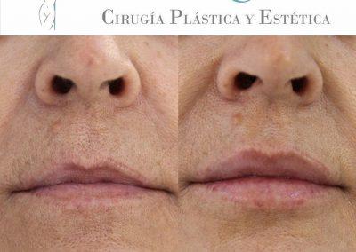 Ácido hialurónico labial en Las Palmas