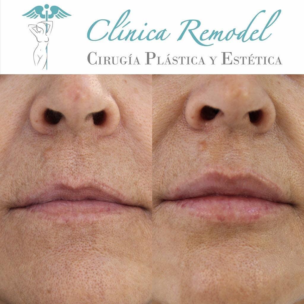 Tratamiento ácido hialurónico labios en Las Palmas frontal antes y después