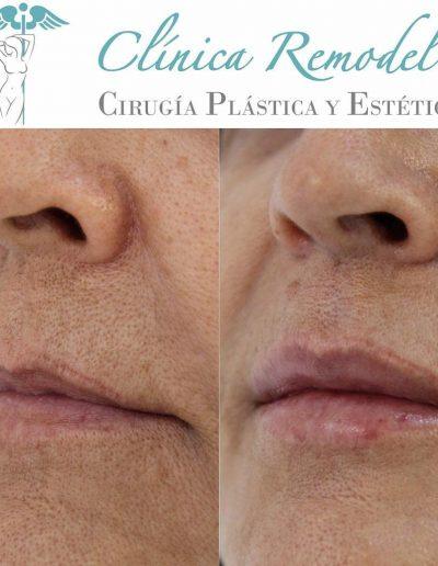 Tratamiento ácido hialurónico labios en Las Palmas lateral antes y después