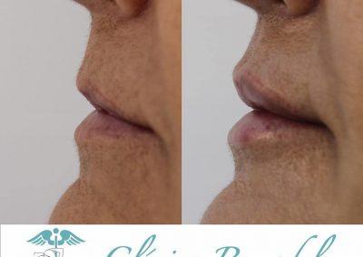 Tratamiento ácido hialurónico labios en Las Palmas perfil antes y después