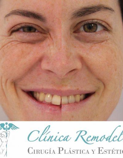 Tratamiento de botox en Las Palmas de Gran Canaria