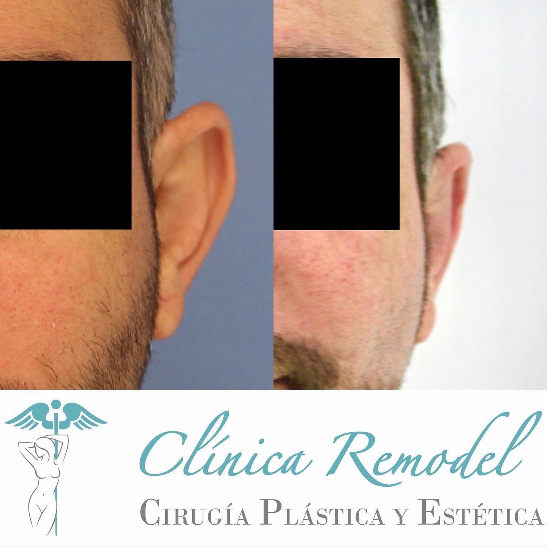 Otoplastia o cirugía de orejas en Las Palmas