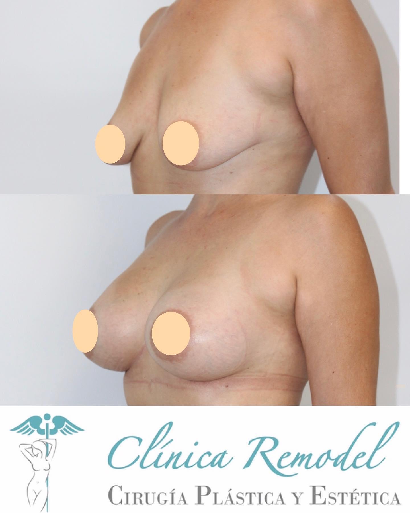 Aumento de pecho con prótesis para corregir mamas caídas y vacías en Clínica Remodel Las Palmas (imagen lateral)