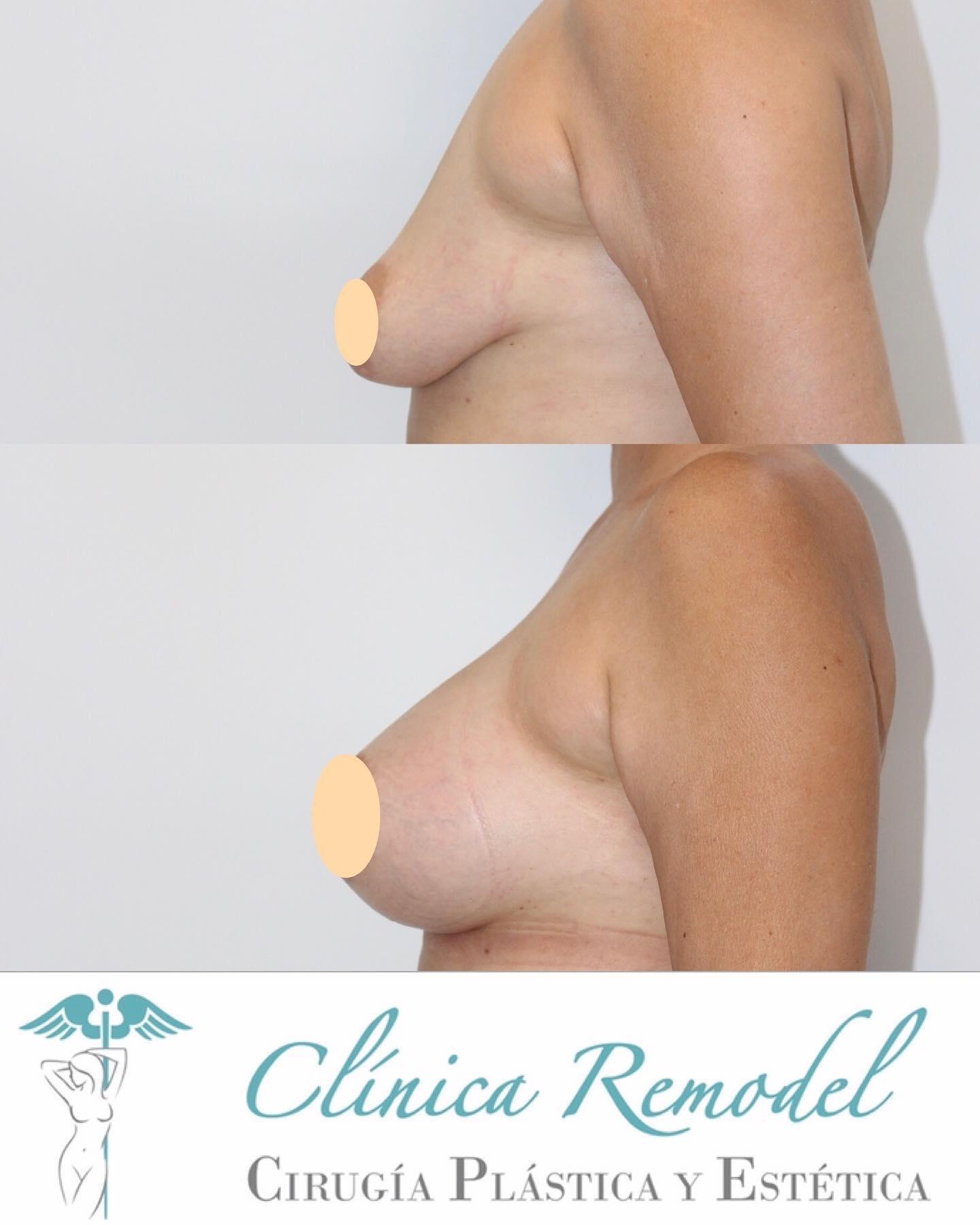 Aumento de pecho con prótesis para corregir mamas caídas y vacías en Clínica Remodel Las Palmas (imagen perfil)
